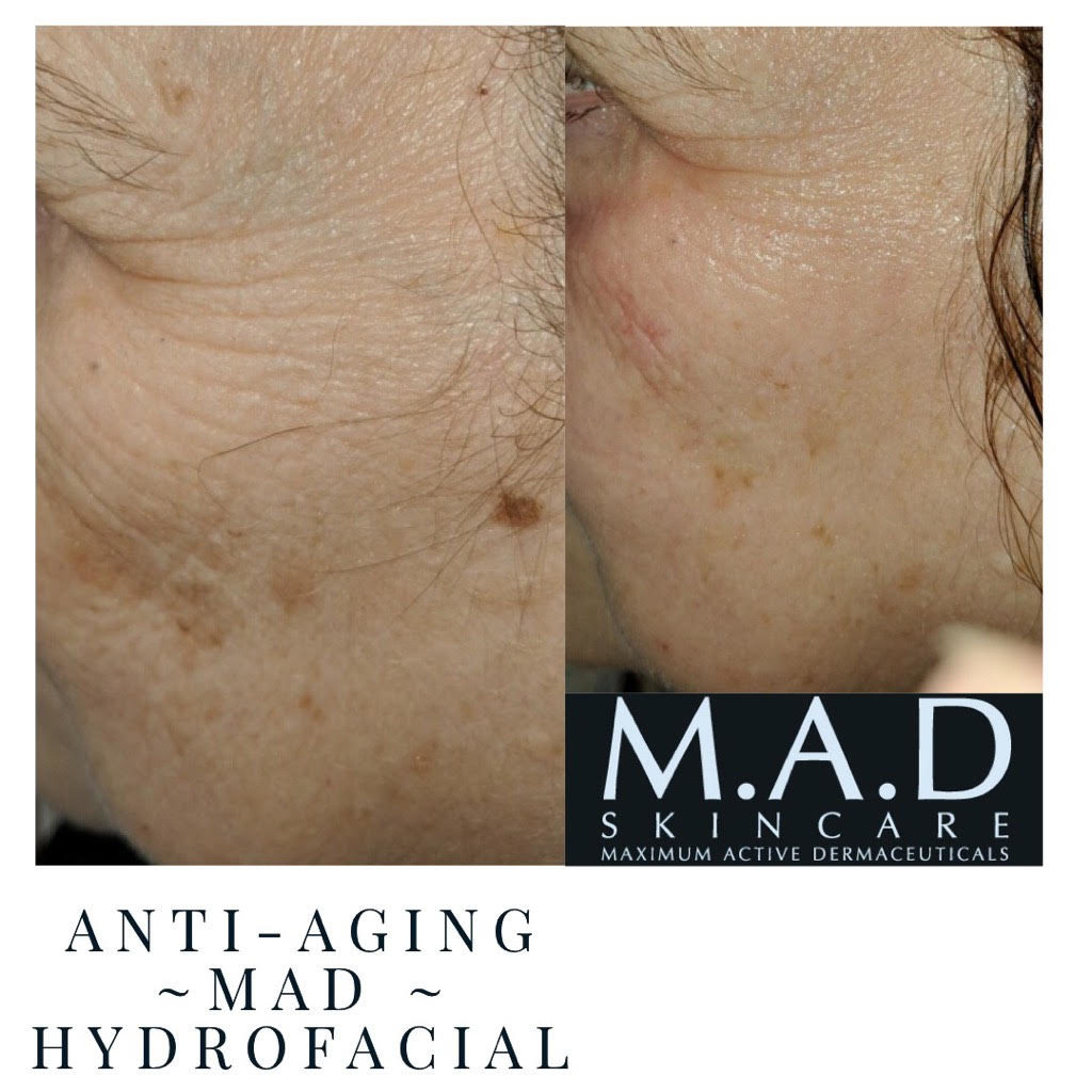 Chemical peel before & after picture